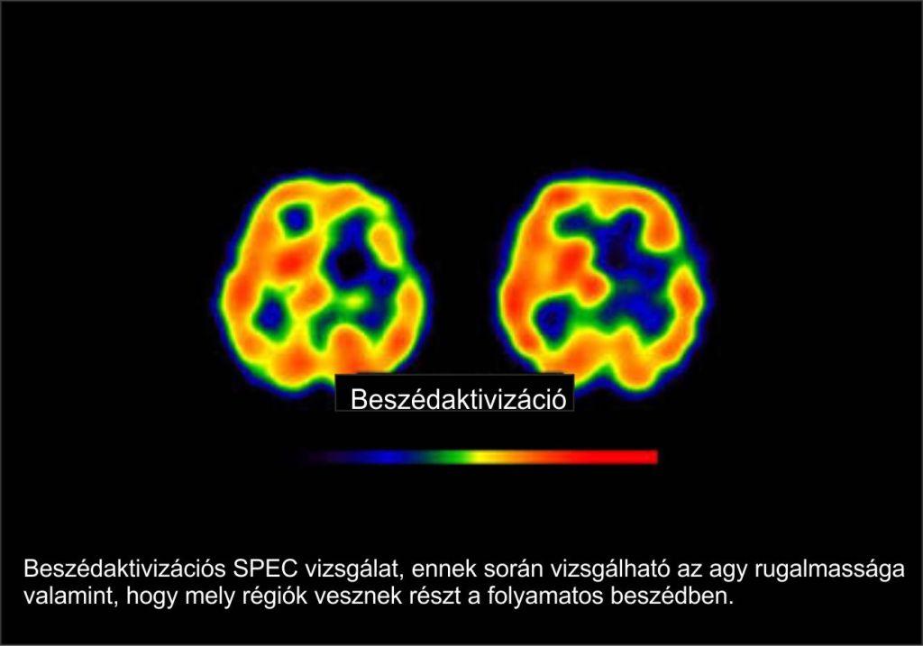 agyműködés-1